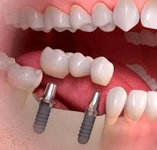 Преимущества восстановления зубов: о вариантах и способах