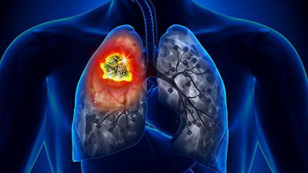 Незаметный враг: как не прозевать симптомы рака