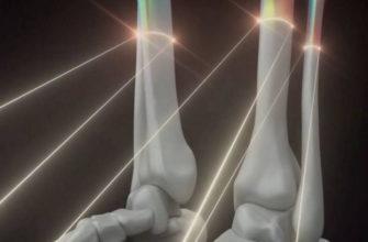 Учёные вместо трансплантации печатают кости внутри человека